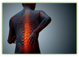 Chiropractic care for back pain after an auto accident injury